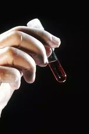 张鹏主任谈血液肿瘤标志物在肿瘤诊治的应用现况