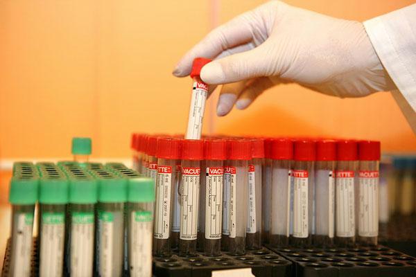 肿瘤血液学检测的进展与挑战