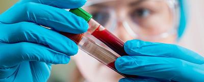 新型血液检测技术能够同时鉴定五种癌症类型
