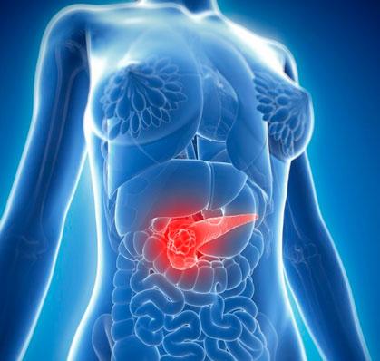 科学家发现外泌体与胰腺癌之间的神秘关系